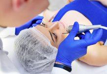 odstranitev bradavice dermatolog