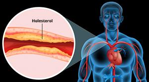 arteroskleroza